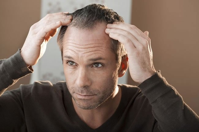 7 Male Hair Loss Causes