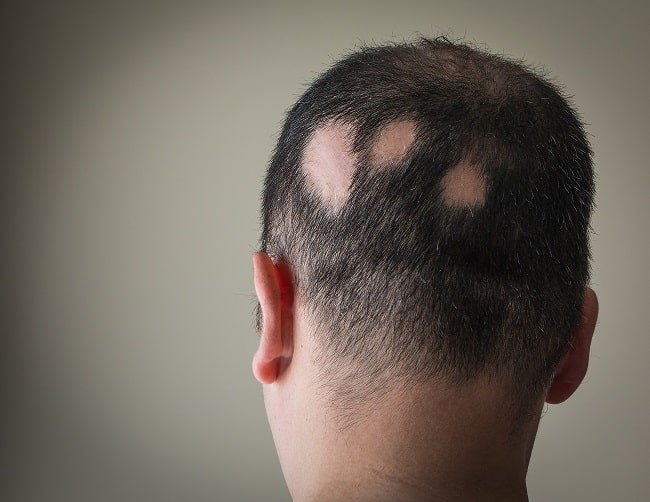 What Are Your Options for Alopecia Treatment?
