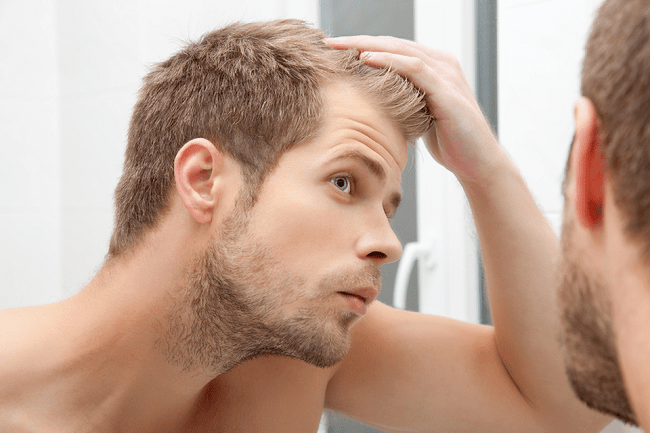 4 Must-Follow Rules for Balding Men