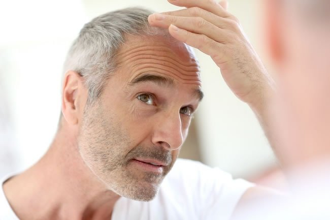 7 Simple Ways to Reduce Hair Loss