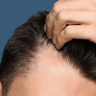 4 Simple Ways to Restore Hair Loss